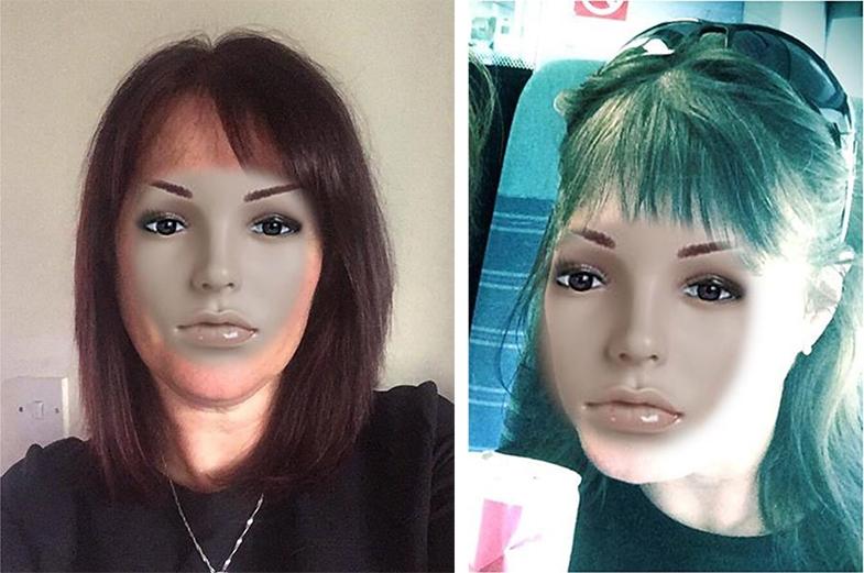 Face Blindness (Prosopagnosia)