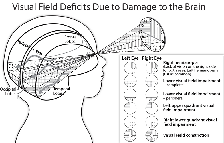 Gordon N Dutton, Vision and the Brain, AFB Press, 2015 The image the person above is looking at is represented by a clock, with each quarter (quadrant) shaded, to show how it relates to the sections in the occipital lobes.
