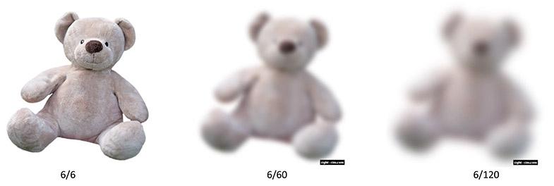 Does Teddy still have eyes?