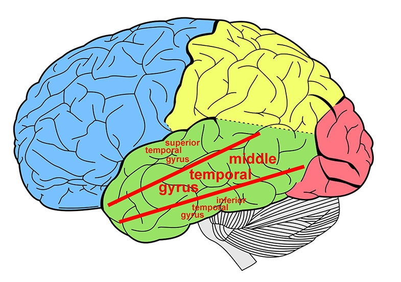 Diagram showing left side of the brain with three areas of the temporal lobe (coloured green) indicated with red lines and text.