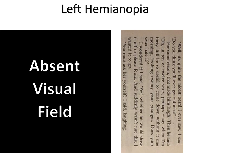 With left hemianopia, turn the page to the side, to read from top to down, to see whole sentences.