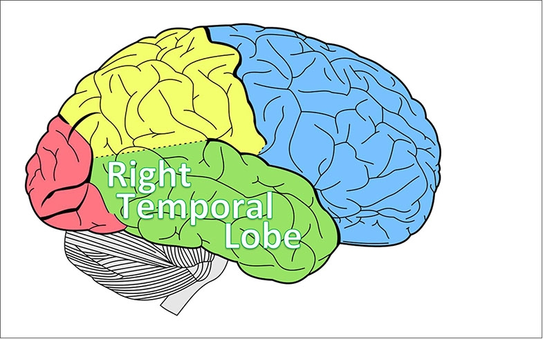 Image of right side of the brain, with the right temporal lobe, coloured green, indicated.