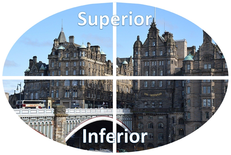 The upper quadrants are called superior and the lower quadrants are called inferior.