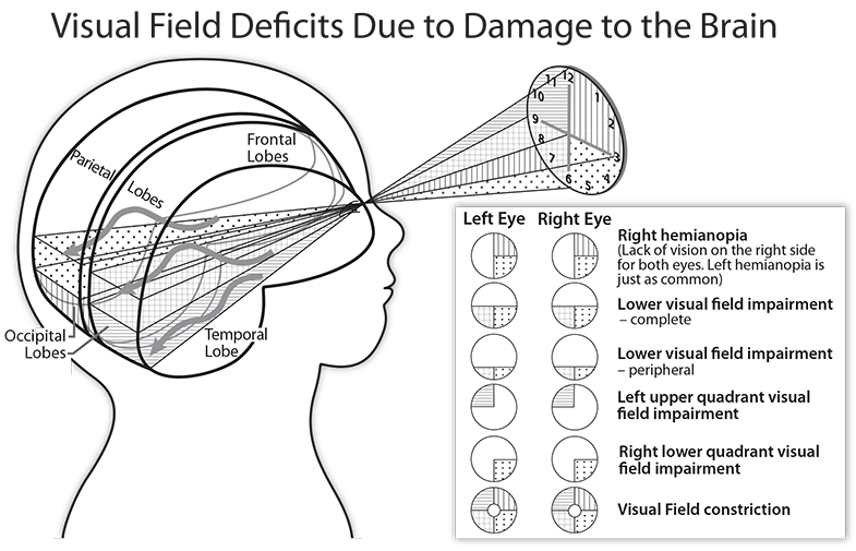 Look at the right occipital lobe in this diagram, and you will see how it relates to vision on the left hand side, so removal of the right occipital lobe means the image is not created in the brain for UD on the left hand side.