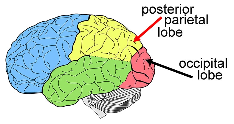 The girl had a brain injury, and needed to have part of her left occipital lobe and part of her left posterior parietal lobe removed.