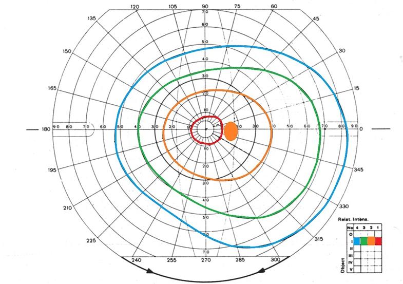 Goldmann visual field record sheet