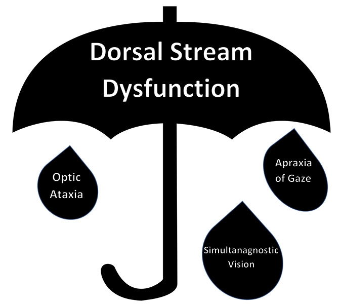 Dorsal stream dysfunction is an umbrella term for a group of cerebral visual impairments.