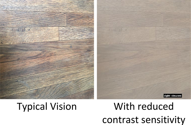 Image of a wooden table top.  How it would be seen with typical vision (left image), and with reduced contrast sensitivity (right).  Simulated image made using sightsim.com to show contrast sensitivity 25%
