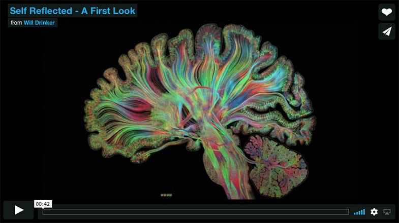 Link to stunning images of the activity in the brain as interpreted by artists