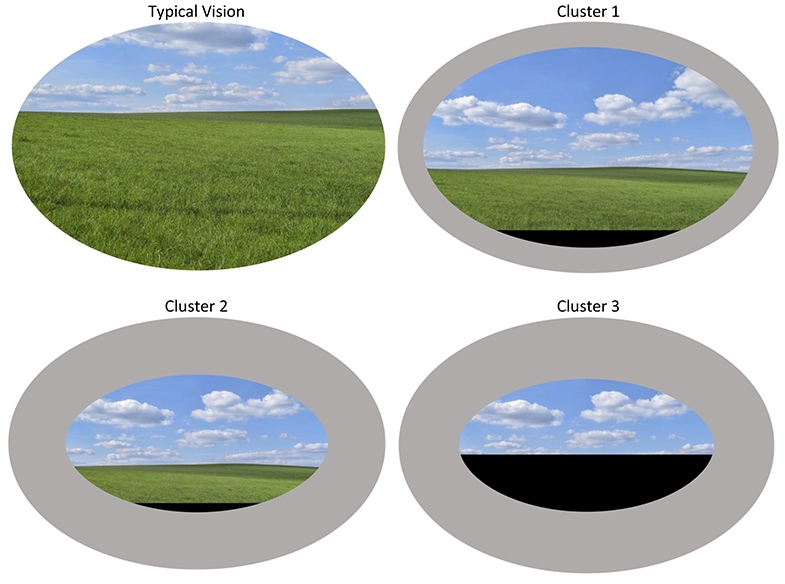 Four oval images of a green field and blue sky, edited to show  different levels of lower visual field impairment and reduced visual attention due to simultanagnostic vision.